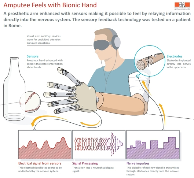 amputee-feels-with-bionic-hand